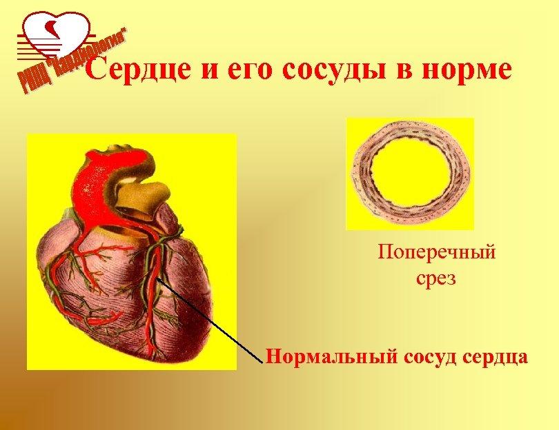 Сердце и его сосуды в норме Поперечный срез Нормальный сосуд сердца