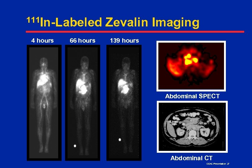 111 In-Labeled 4 hours 66 hours Zevalin Imaging 139 hours Abdominal SPECT Abdominal CT