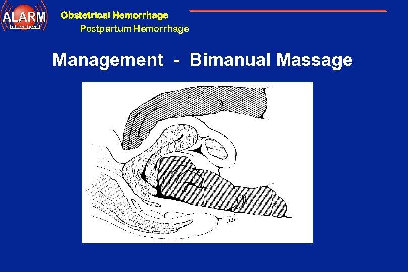 Obstetrical Hemorrhage International Postpartum Hemorrhage Management - Bimanual Massage