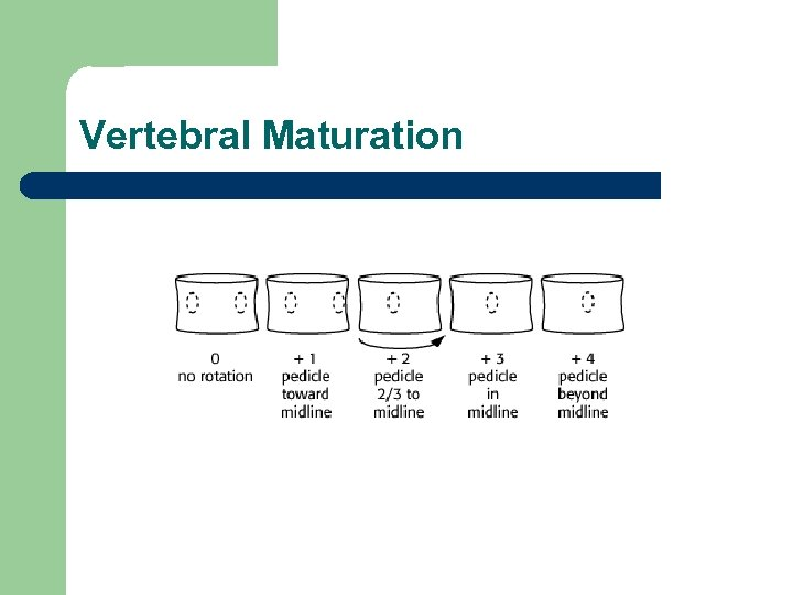 Vertebral Maturation