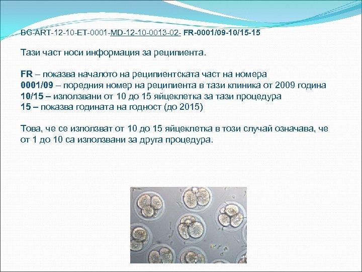 BG-ART-12 -10 -ET-0001 -MD-12 -10 -0013 -02 - FR-0001/09 -10/15 -15 Тази част носи