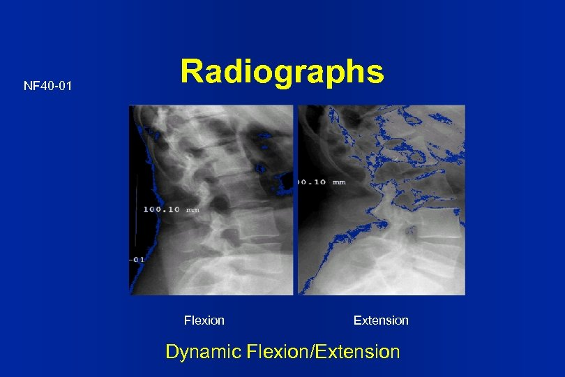 NF 40 -01 Radiographs Flexion Extension Dynamic Flexion/Extension