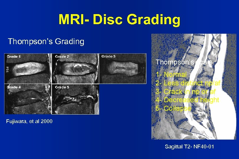 MRI- Disc Grading Thompson's scale 1 - Normal 2 - Less distinct np/af 3
