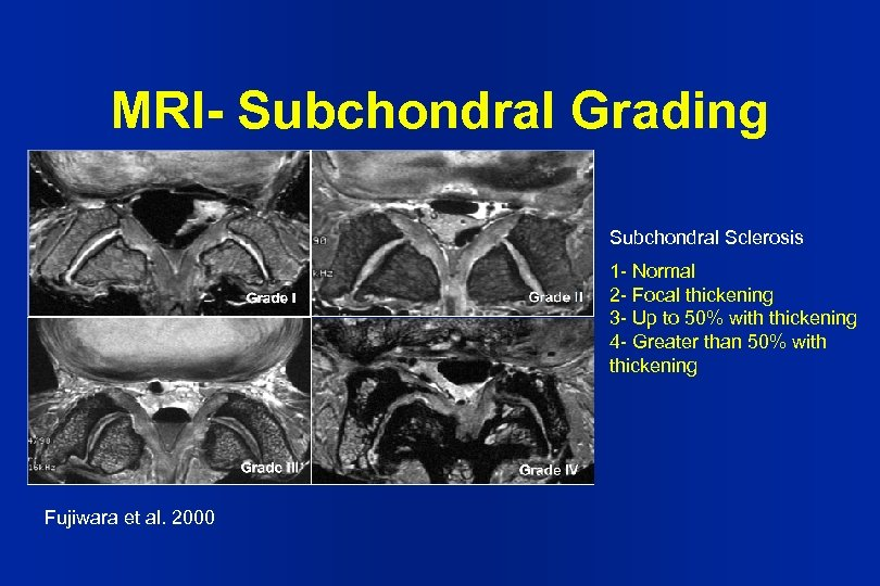 MRI- Subchondral Grading Subchondral Sclerosis 1 - Normal 2 - Focal thickening 3 -