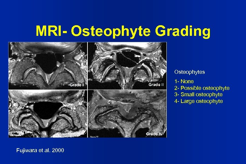 MRI- Osteophyte Grading Osteophytes 1 - None 2 - Possible osteophyte 3 - Small