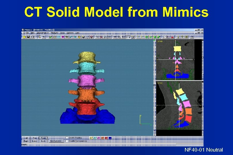 CT Solid Model from Mimics NF 40 -01 Neutral