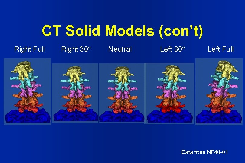 CT Solid Models (con't) Right Full Right 30 Neutral Left 30 Left Full Data