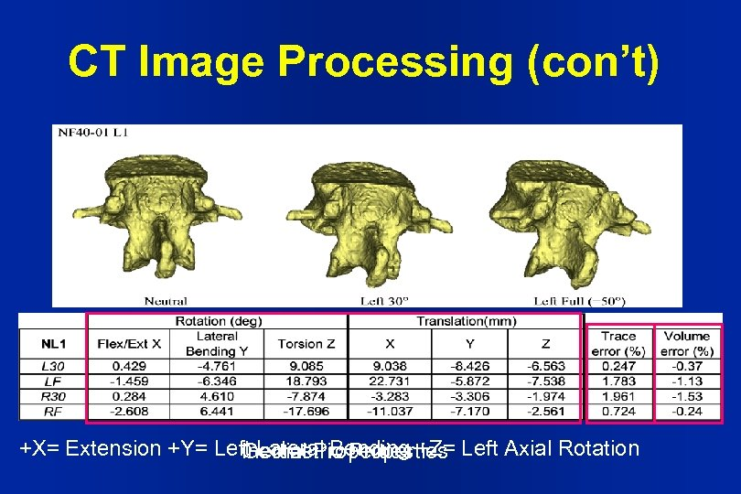 CT Image Processing (con't) +X= Extension +Y= Left Lateral Bending +Z= Left Axial Rotation