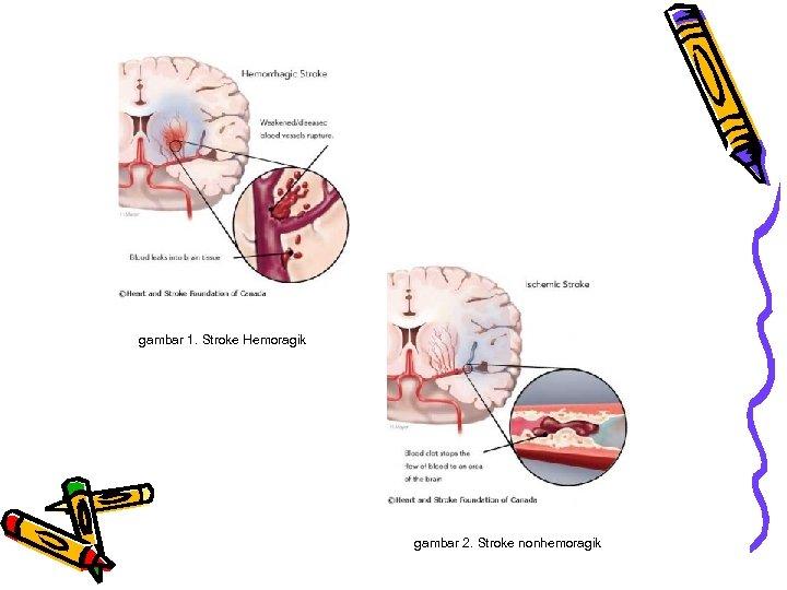 gambar 1. Stroke Hemoragik gambar 2. Stroke nonhemoragik