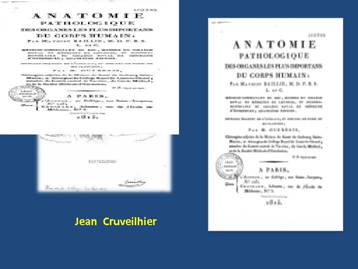 Jean Cruveilhier
