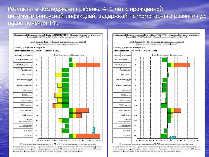 Результаты обследования ребенка А. 2 лет с врожденной цитомегаловирусной инфекцией, задержкой психомоторного развития до