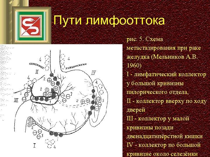 Пути лимфооттока рис. 5. Схема метастазирования при раке желудка (Мельников А. В. 1960) I