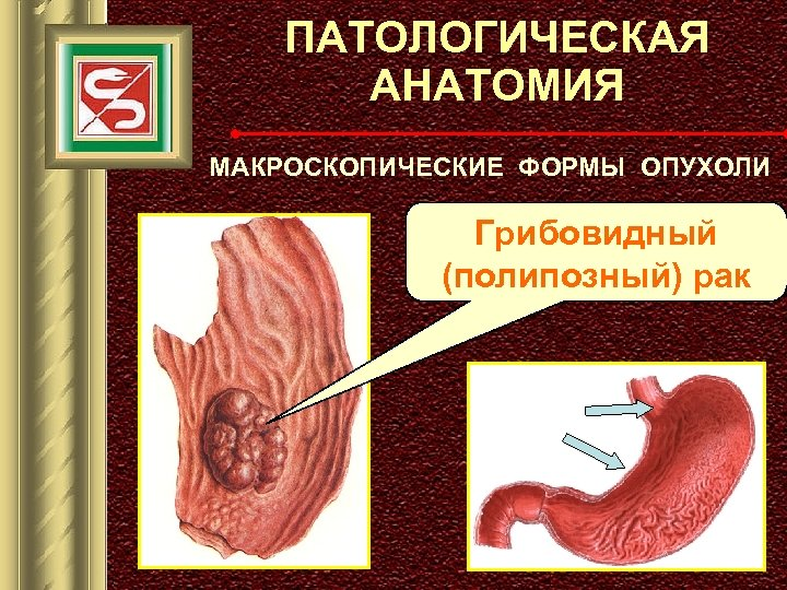 ПАТОЛОГИЧЕСКАЯ АНАТОМИЯ МАКРОСКОПИЧЕСКИЕ ФОРМЫ ОПУХОЛИ Грибовидный (полипозный) рак