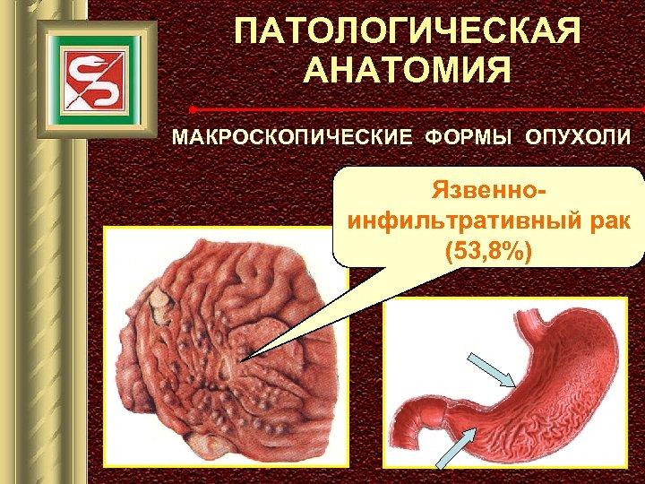 ПАТОЛОГИЧЕСКАЯ АНАТОМИЯ МАКРОСКОПИЧЕСКИЕ ФОРМЫ ОПУХОЛИ Язвенноинфильтративный рак (53, 8%)