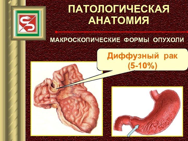 ПАТОЛОГИЧЕСКАЯ АНАТОМИЯ МАКРОСКОПИЧЕСКИЕ ФОРМЫ ОПУХОЛИ Диффузный рак (5 -10%)