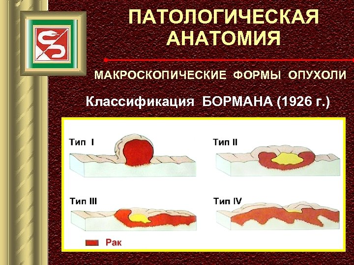 ПАТОЛОГИЧЕСКАЯ АНАТОМИЯ МАКРОСКОПИЧЕСКИЕ ФОРМЫ ОПУХОЛИ Классификация БОРМАНА (1926 г. )