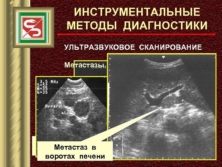 ИНСТРУМЕНТАЛЬНЫЕ МЕТОДЫ ДИАГНОСТИКИ УЛЬТРАЗВУКОВОЕ СКАНИРОВАНИЕ Метастазы в паренхиме печени ПЕРВИЧНАЯ ОПУХОЛЬ Метастаз в (эндофитный