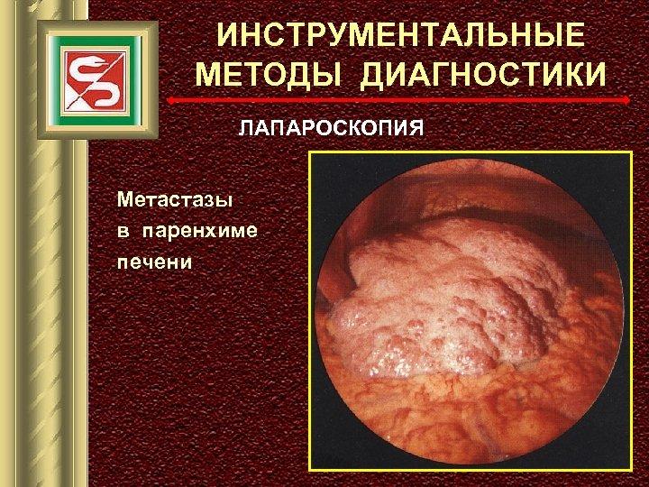 ИНСТРУМЕНТАЛЬНЫЕ МЕТОДЫ ДИАГНОСТИКИ ЛАПАРОСКОПИЯ Метастазы в паренхиме печени