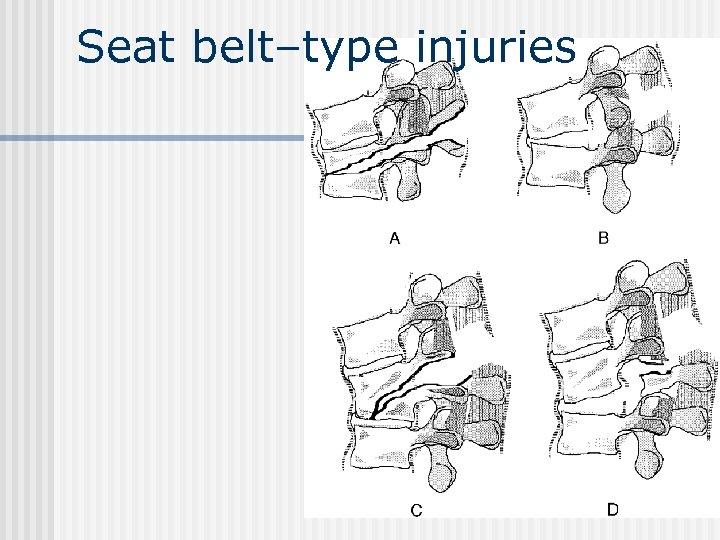 Seat belt–type injuries
