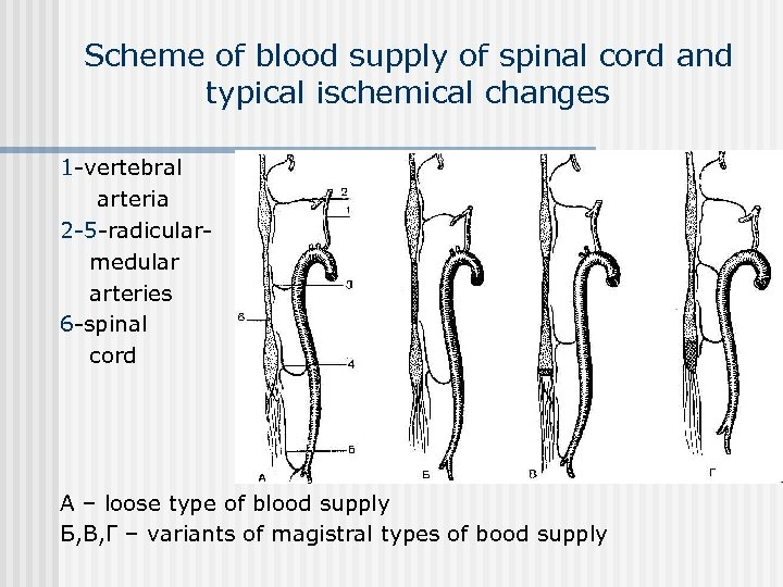 Scheme of blood supply of spinal cord and typical ischemical changes 1 -vertebral arteria