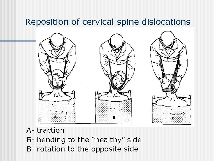 "Reposition of cervical spine dislocations А- traction Б- bending to the ""healthy"" side В-"