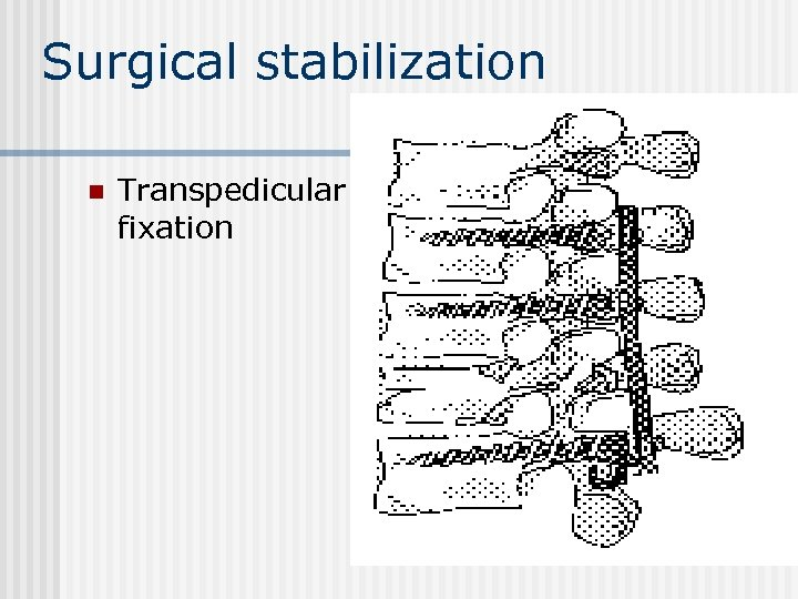Surgical stabilization n Transpedicular fixation