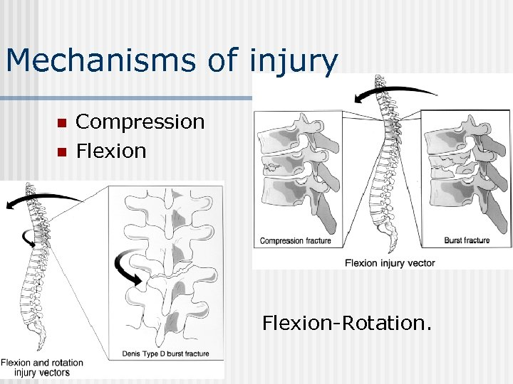Mechanisms of injury n n n Compression Flexion-Rotation.