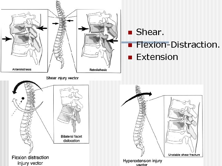 n n n Shear. Flexion-Distraction. Extension