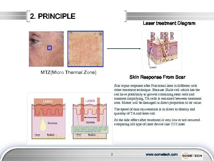 2. PRINCIPLE Laser treatment Diagram MTZ(Micro Thermal Zone) Skin Response From Scar repair response