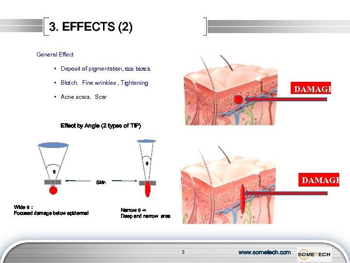 3. EFFECTS (2) General Effect • Deposit of pigmentation, thin blotch • Blotch, Fine