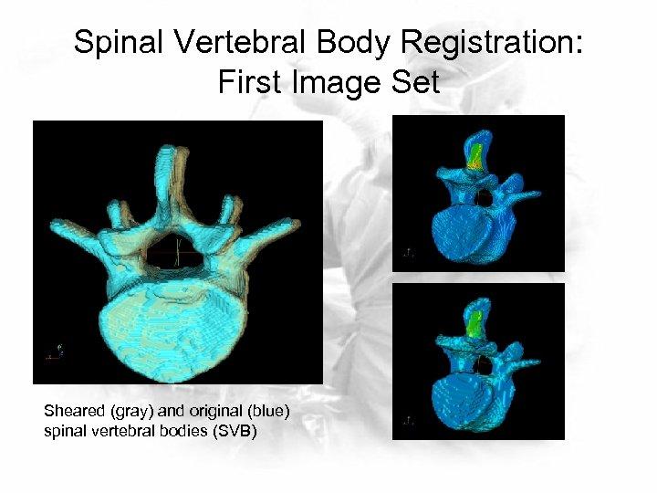 Spinal Vertebral Body Registration: First Image Set Sheared (gray) and original (blue) spinal vertebral