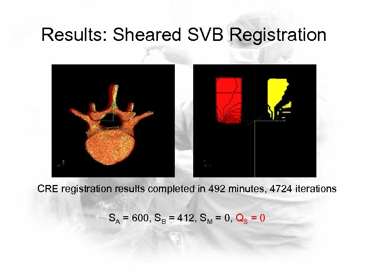 Results: Sheared SVB Registration CRE registration results completed in 492 minutes, 4724 iterations SA