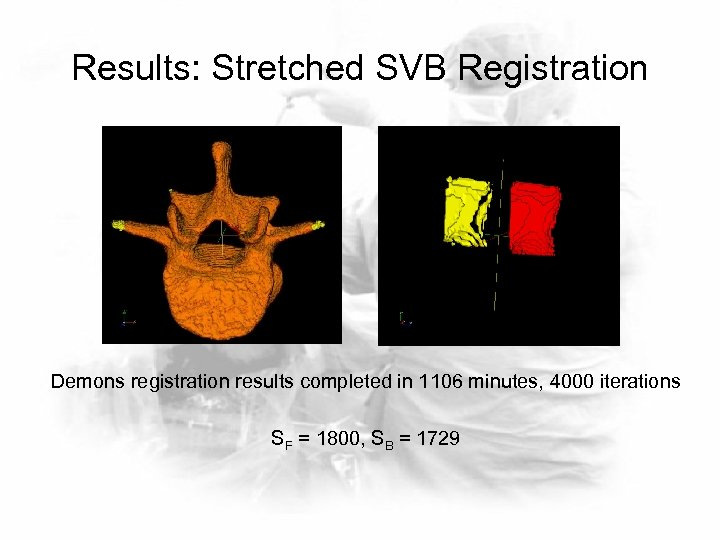 Results: Stretched SVB Registration Demons registration results completed in 1106 minutes, 4000 iterations SF
