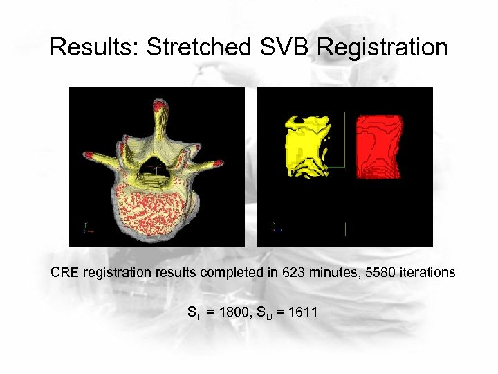 Results: Stretched SVB Registration CRE registration results completed in 623 minutes, 5580 iterations SF