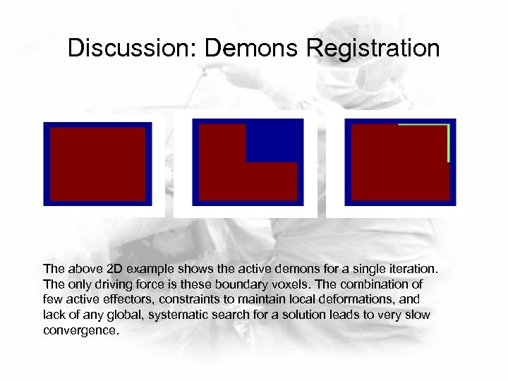 Discussion: Demons Registration The above 2 D example shows the active demons for a