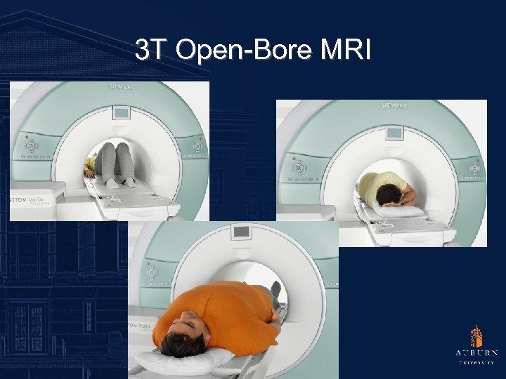3 T Open-Bore MRI