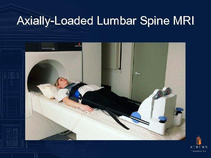 Axially-Loaded Lumbar Spine MRI