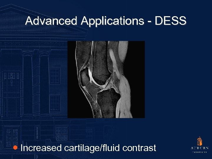 Advanced Applications - DESS ● Increased cartilage/fluid contrast