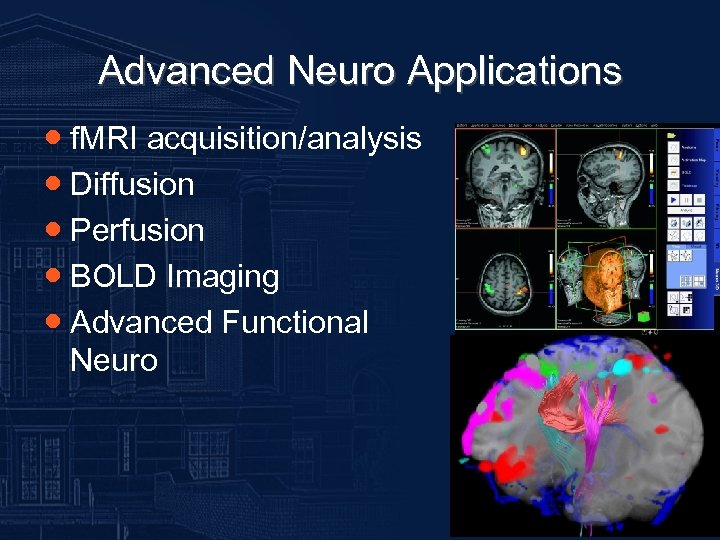 Advanced Neuro Applications ● f. MRI acquisition/analysis ● Diffusion ● Perfusion ● BOLD Imaging