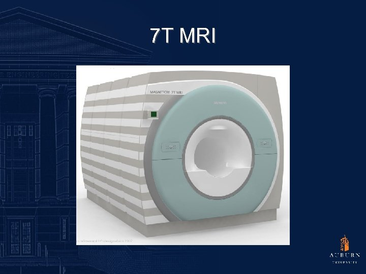 7 T MRI