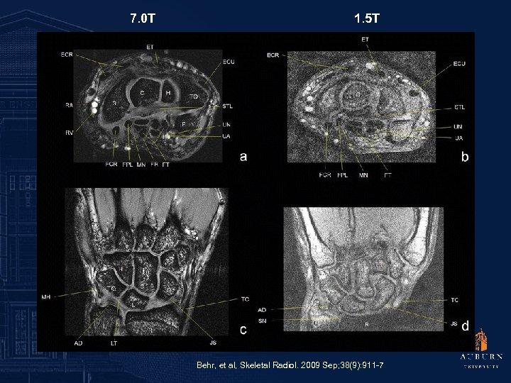 7. 0 T 1. 5 T Behr, et al, Skeletal Radiol. 2009 Sep; 38(9):
