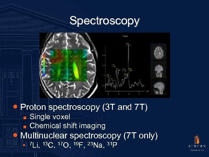 Spectroscopy ● Proton spectroscopy (3 T and 7 T) ■ ■ Single voxel Chemical