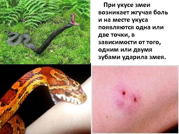 При укусе змеи возникает жгучая боль и на месте укуса появляются одна или две