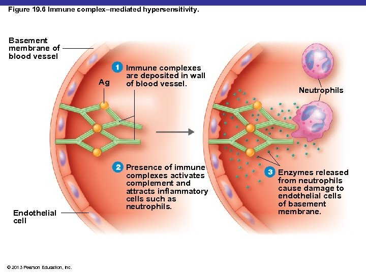 Figure 19. 6 Immune complex–mediated hypersensitivity. Basement membrane of blood vessel Ag Endothelial cell