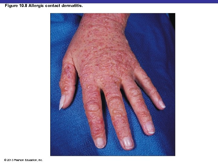 Figure 19. 8 Allergic contact dermatitis. Insert Fig 19. 8 © 2013 Pearson Education,