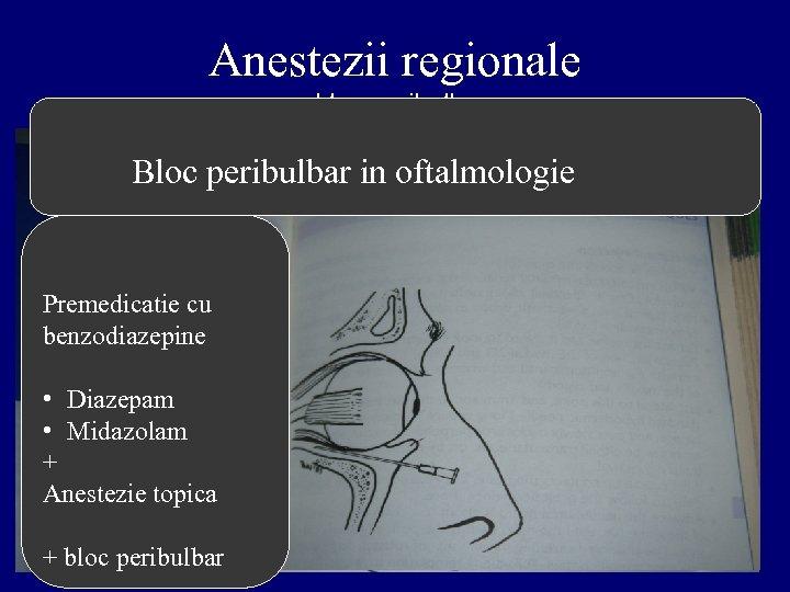 Anestezii regionale - bloc peribulbar - Bloc peribulbar in oftalmologie Premedicatie cu benzodiazepine •