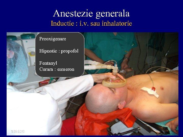 Anestezie generala Inductie : i. v. sau inhalatorie Preoxigenare Hipnotic : propofol Fentanyl Curara
