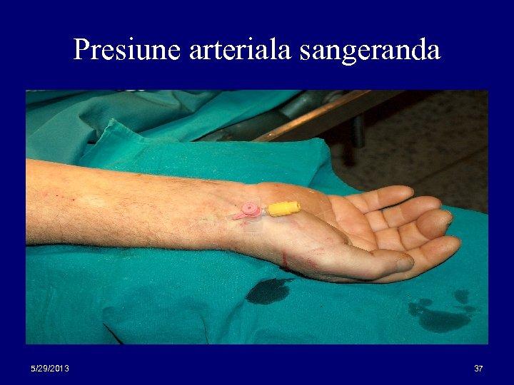 Presiune arteriala sangeranda 5/29/2013 37