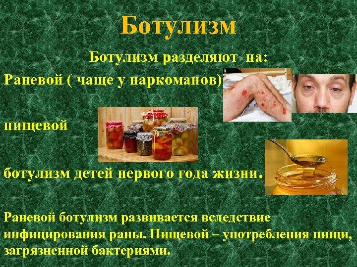 Ботулизм разделяют на: Раневой ( чаще у наркоманов) пищевой ботулизм детей первого года жизни.