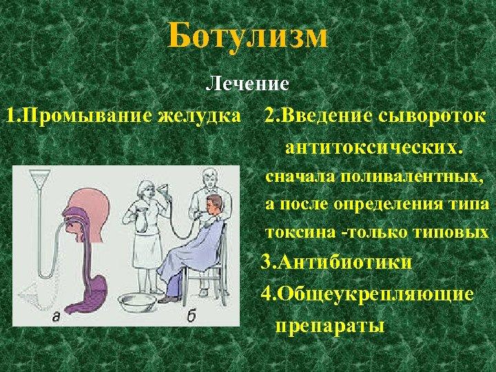 Ботулизм Лечение 1. Промывание желудка 2. Введение сывороток антитоксических. сначала поливалентных, а после определения